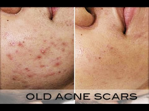 How To Clear Acne In 3 Days
