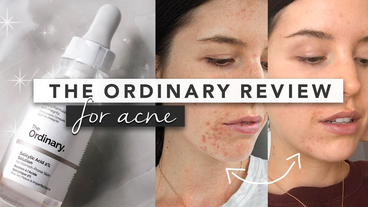 The Ordinary Review These Products Saved My Skin By Erin Elizabeth Youtube
