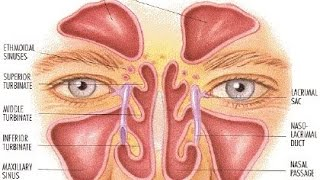Healing Sinus infections & chest congestion Naturally