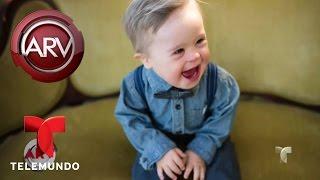 El bebé con síndrome de Down que triunfa en la moda | Al Rojo Vivo | Telemundo