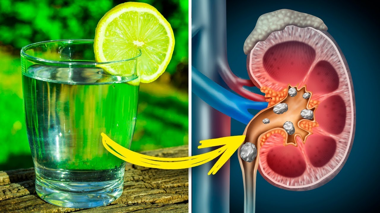 8 Health Problems You Can Cure With Lemon Juice