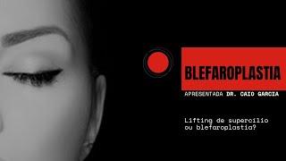 BLEFAROPLASTIA (CIRURGIA DAS PÁLPEBRAS) - Lifting de supercílio ou blefaroplastia?