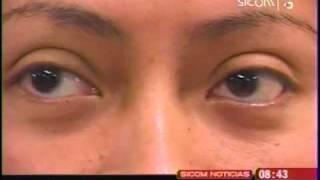 infecciones en los ojos se presentan más en la temporada invernal