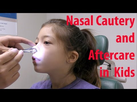 Pediatric Nosebleed Cauterization And Aftercare