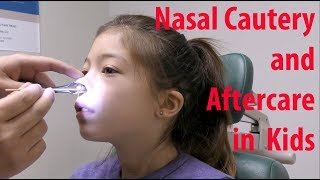 Pediatric Nosebleed Cauterization and Aftercare YouTube Videos