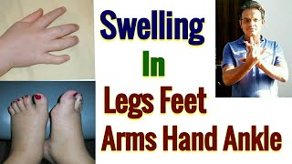 Acupressure Point For SWELLING - In Legs And Feet , In Arms And Hand , In Ankle , In Fingers - Hindi