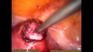 myomectomie par coelioscopie