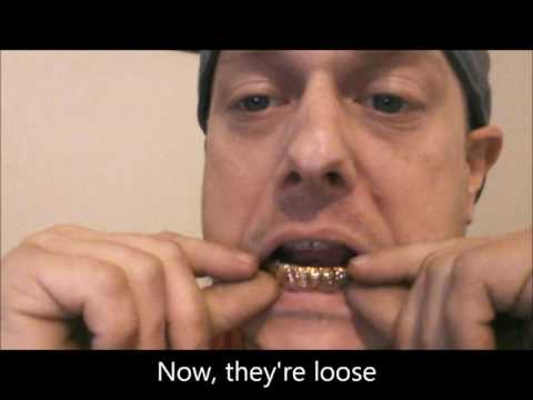 GrillzLife -  How To Remove Your Grillz