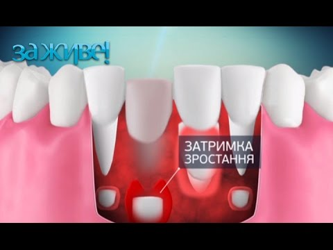 Как вырвать зуб который шатается