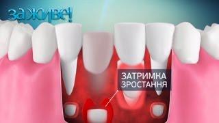 видео если зуб у вас болит