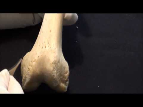 Human Anatomy video: The Femur