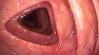 Exame colonoscopia