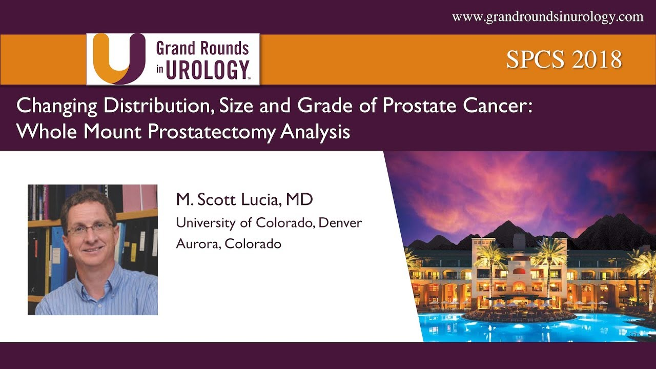 Changing Distribution, Size and Grade of Prostate Cancer