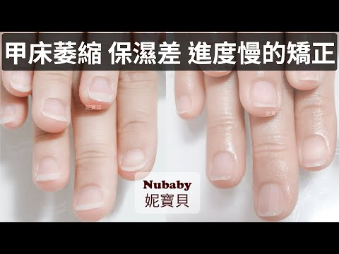 咬指甲矯正案例|會計新鮮人的壓力|甲床萎縮 保濕差 進度慢的矯正
