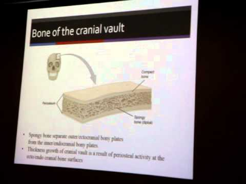 Growth of Cranial Vault and Cranial Base