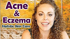 hqdefault - Acne Care Difference Natural Skin Treatment