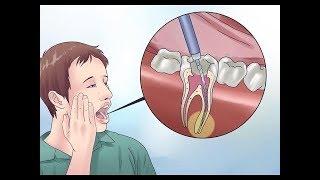 ЗУБНАЯ БОЛЬ ПОКИНЕТ ВАС НАВСЕГДА , если вы знаете этот секрет / как избавиться от зубной боли