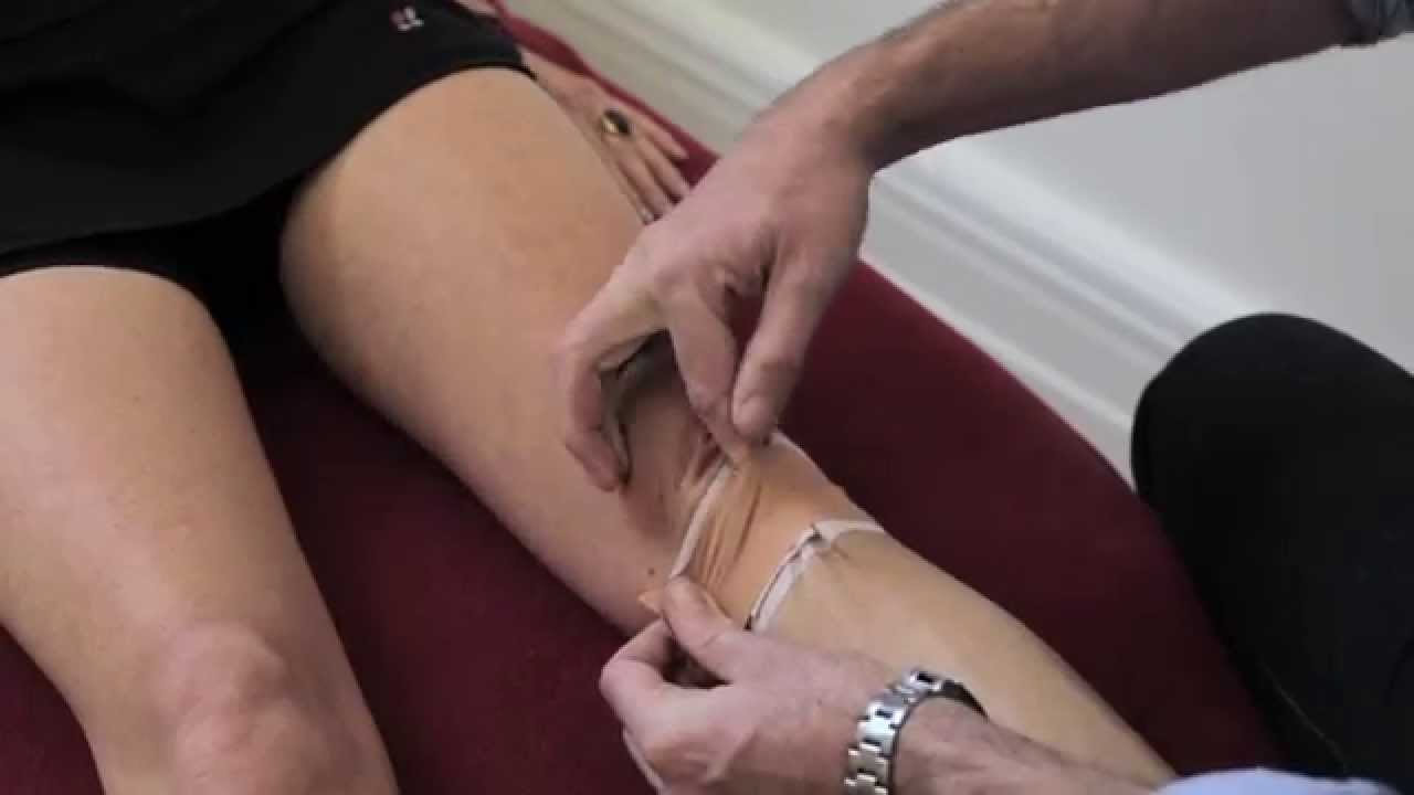 Mcconnell Taping Patella Tendon Tape Youtube