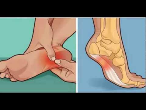 Когда наступаю на ногу болит пятка