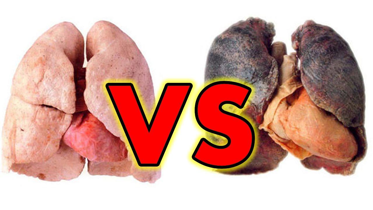 Resultado de imagen para pulmones dañados