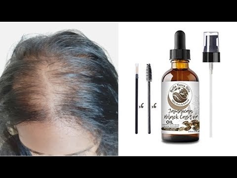 Thin Hair Review: Organic Black Jamaican Castor Oil