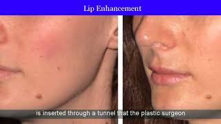 Temporary Lip Fillers Sunnyvale | Temporary Lip Augmentation Sunnyvale