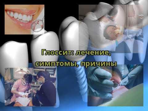 Глоссит: лечение, симптомы, причины