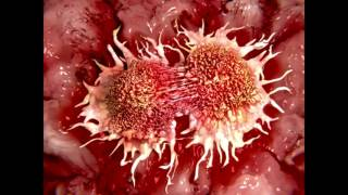 Jason, How Do Ketogenic Diets Fight Cancer Cells?