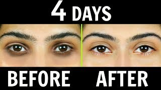 How to Remove Dark Circles Naturally in 4 Days (100% Results) | PrettyPriyaTV