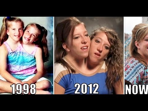 Thumbnail: Interesting Things About Famous Conjoined Twins Abby And Brittany Hensel