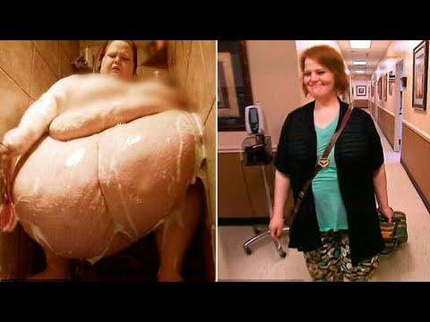 Девушка сбросила 200 кг и вышла замуж за любовь всей своей жизни. Посмотри, как она изменилась!