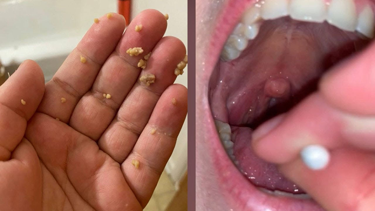 Tonsil Stones, Tonsil Stone, Tonsilloliths!  All About Tonsil Stones