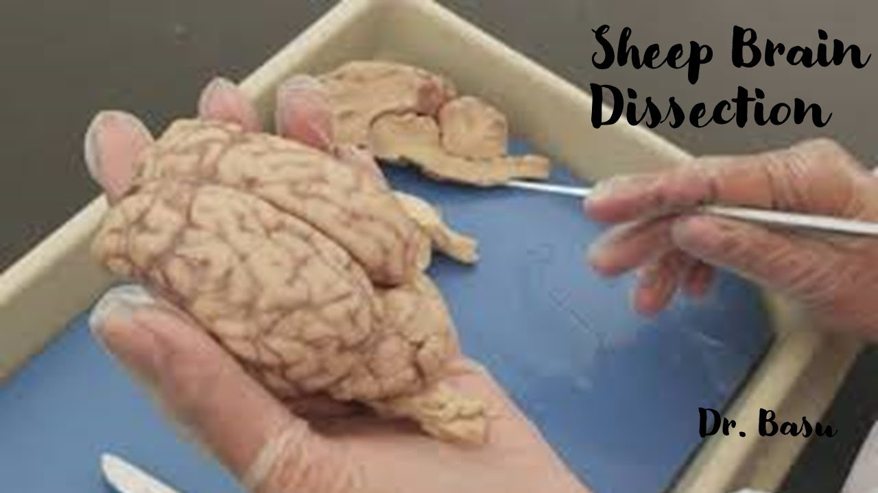 Easy Anatomy & Physiology- Sheep brain dissection - YouTube