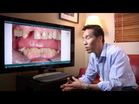 advanced-dental-artistry---broken-teeth-new-smile---perth-cosmetic-and-dental-implant-team
