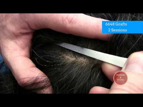 hair transplant results scar focus 03 6648