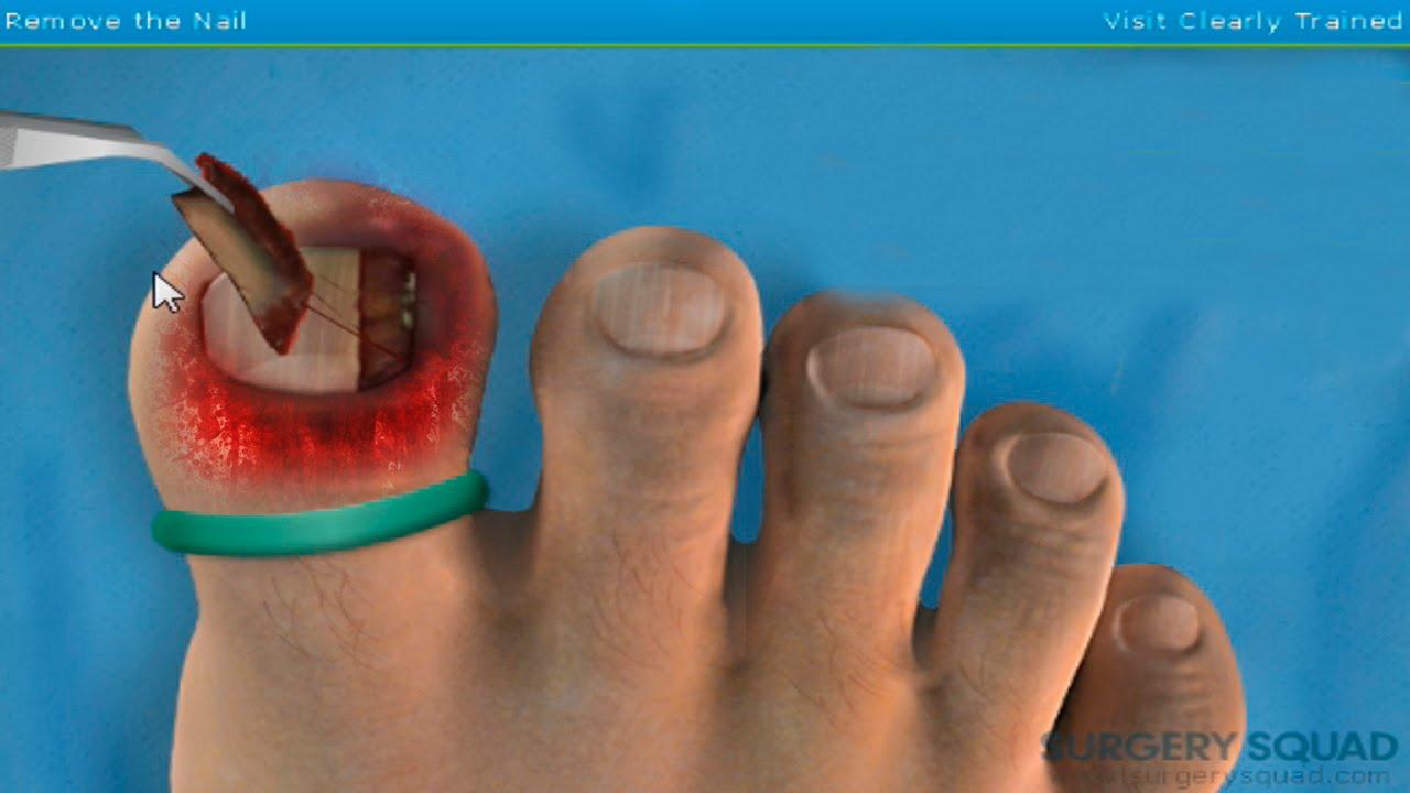 ¿cómo sacar una una encarnada en el dedo gordo del pie