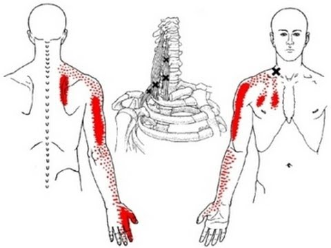 shoulder, arm, hand and scapula pain from scalene muscle trigger, Cephalic Vein