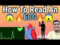 How to Read an ECG   ECG reading explained