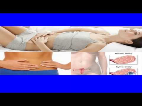 Ovarian Cyst Treatment 100% CURE IN 3 DAYS OVARIAN CYST NATURAL REMEDY