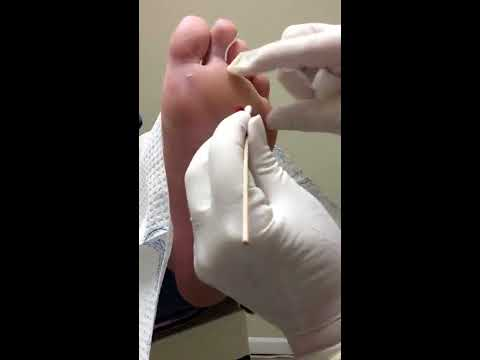 "How to ""punch"" a plantar wart."