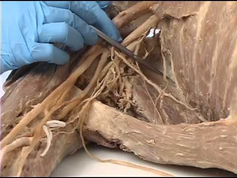 Upper Limb   4 of 4   Nerves and Blood Supply