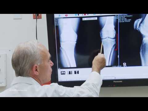 Plymouth Bay Orthopedic Associates Knee Replacement Story