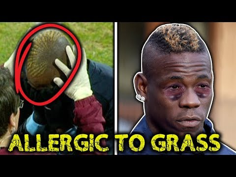 10 Most RIDICULOUS Football Injuries!