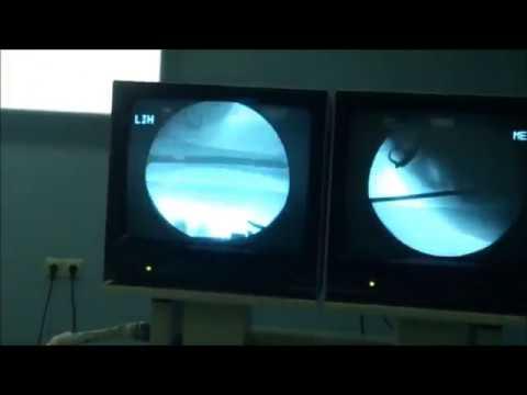 Humerus Shaft Fracture Antegrade Locked Intramedullary Osteosynthesis.  NMC West Georgia