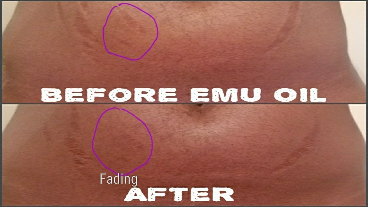 Emu Oil Soap: Erase Stretch Marks From Your Skin Effectively