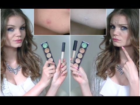 camoufler acné maquillage