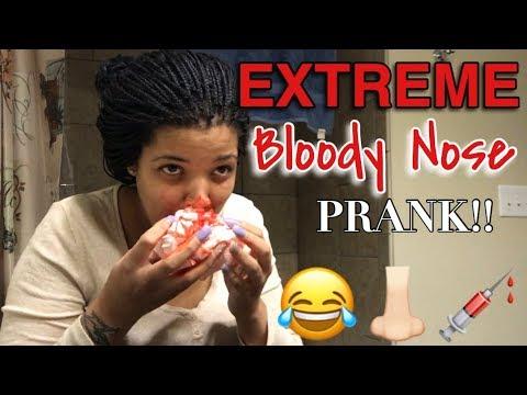 EXTREME BLOODY NOSE PRANK!! (GONE WRONG)