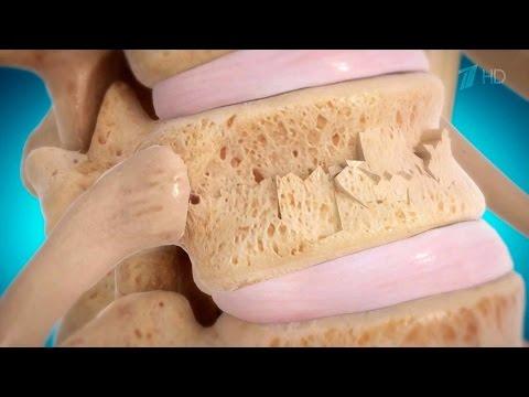 Компрессионный перелом позвоночника - симптомы