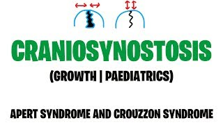 Craniosynostosis: Treatment Options for Metopic & Unilateral Coronal Synostosis   Part 6 of 6.