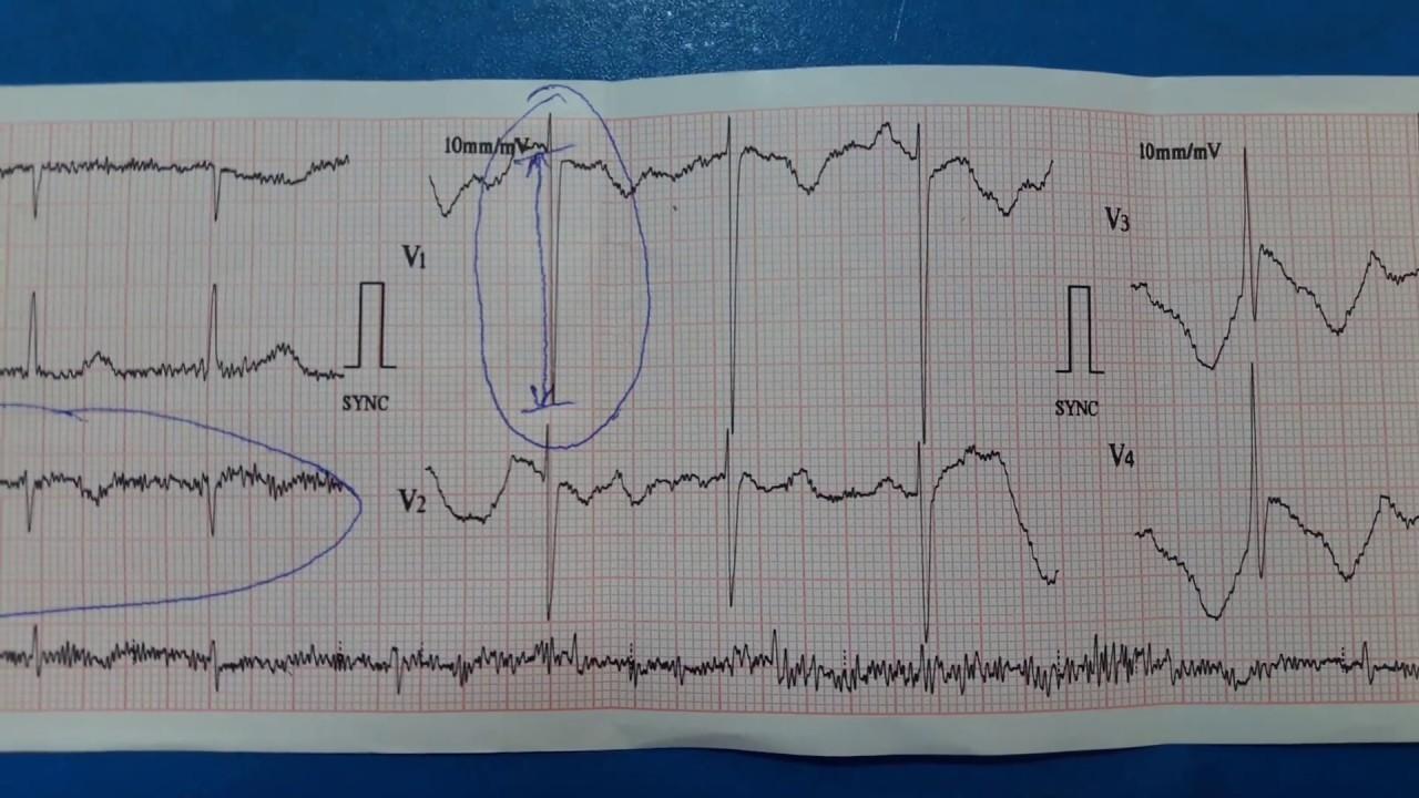left ventricular hypertrophy  lvh  ecg